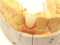 Oral surgery and implant therapy
